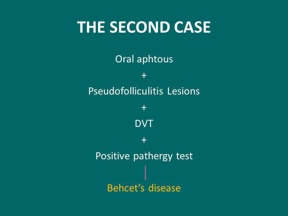 THE SECOND CASE Oral aphtous + Pseudofolliculitis Lesions DVT Positive pathergy test Behcet's disease