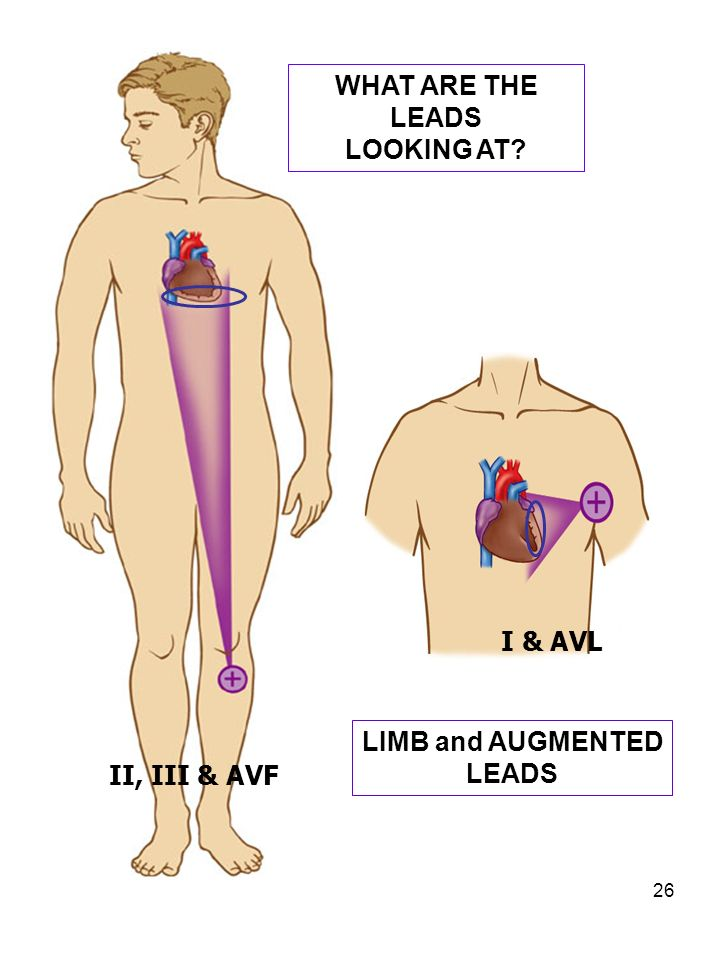 II, III & AVF WHAT ARE THE LEADS LOOKING AT I & AVL LIMB and AUGMENTED LEADS