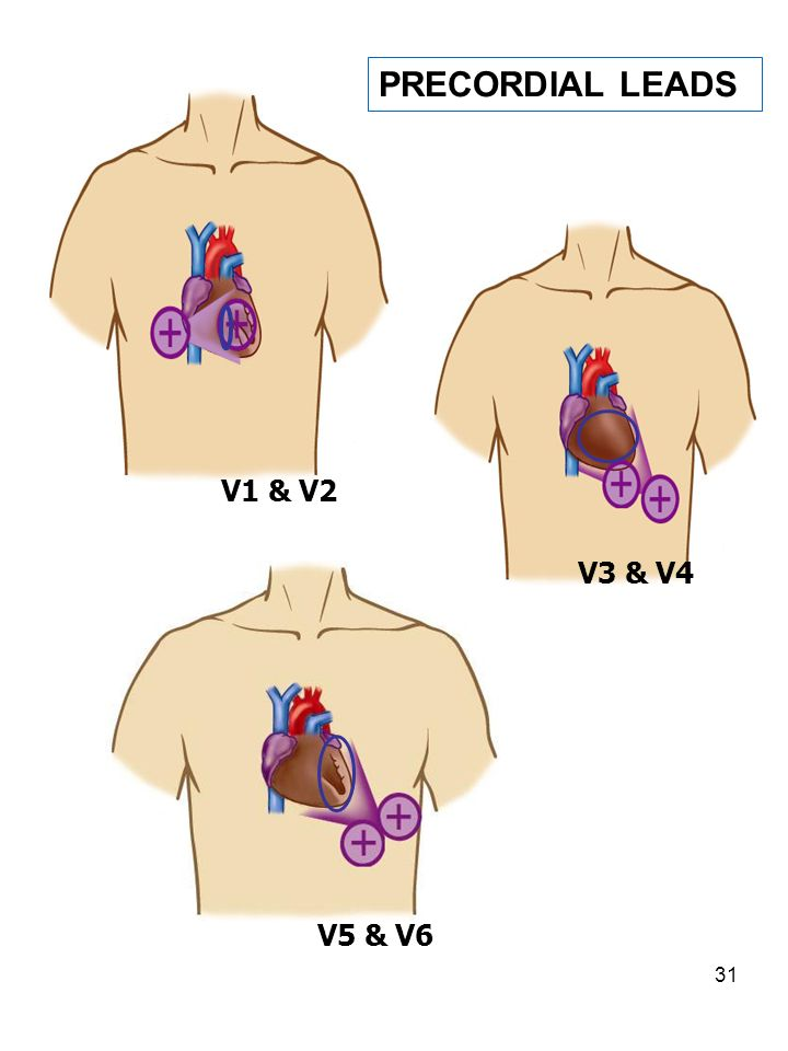 PRECORDIAL LEADS V1 & V2 V3 & V4 V5 & V6