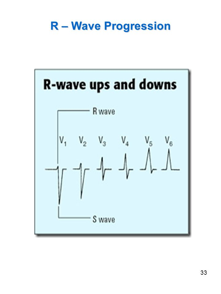 R – Wave Progression