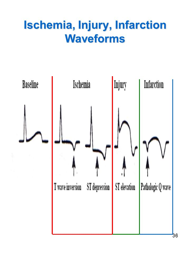 Ischemia, Injury, Infarction Waveforms