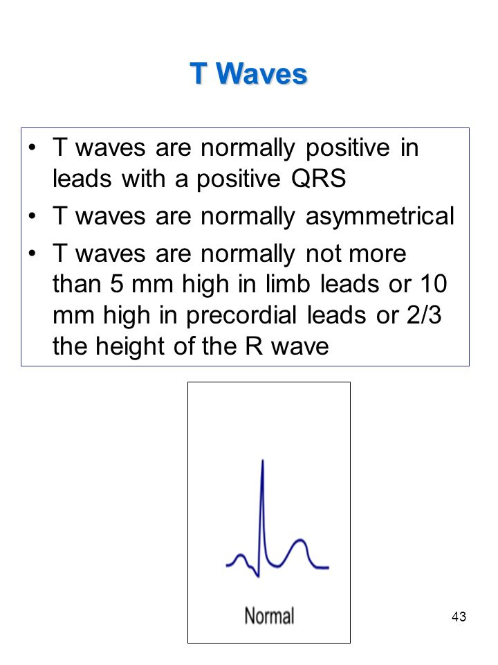 T Waves T waves are normally positive in leads with a positive QRS