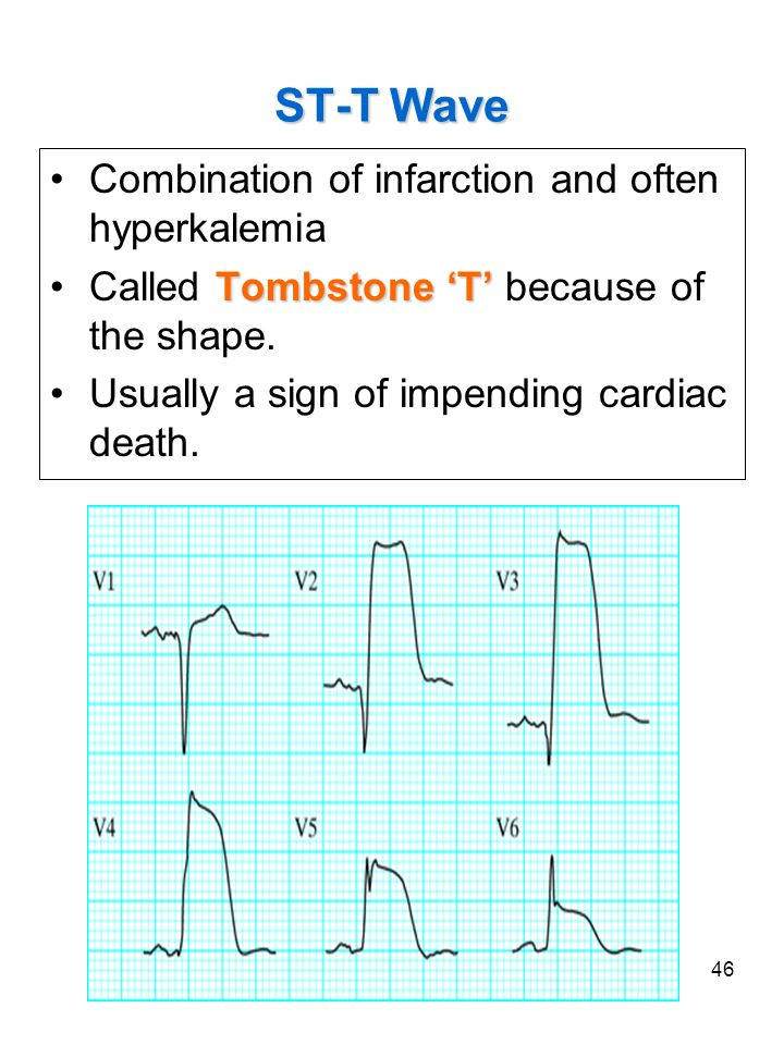 ST-T Wave Combination of infarction and often hyperkalemia