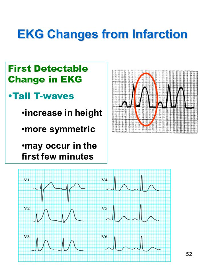 EKG Changes from Infarction