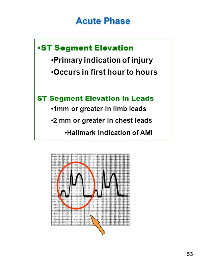 Acute Phase ST Segment Elevation Primary indication of injury