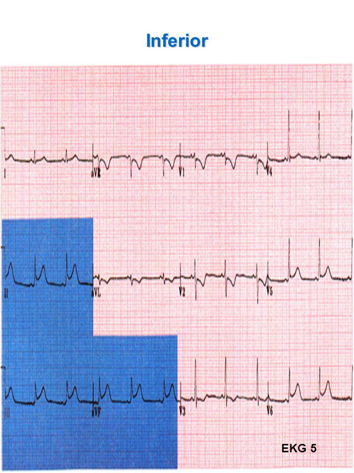 Inferior EKG 5