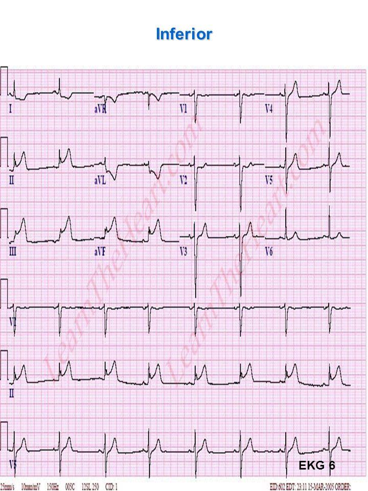 Inferior EKG 6