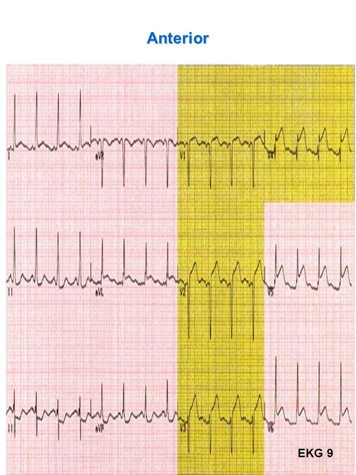 Anterior EKG 9