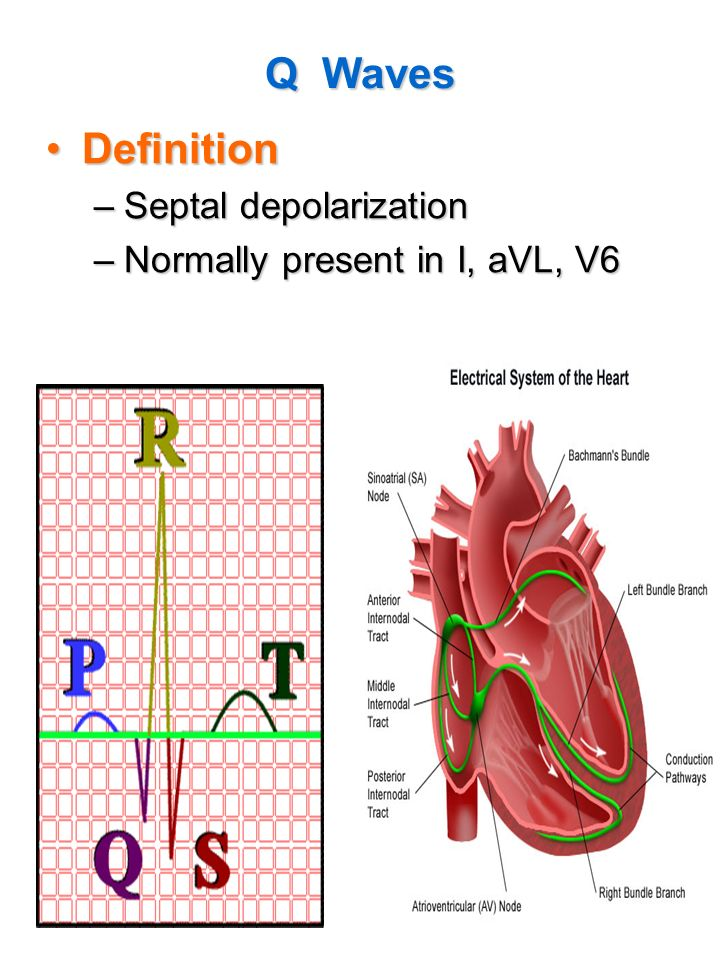 Q Waves Definition Septal depolarization