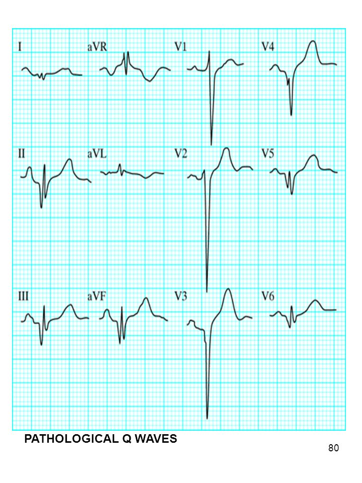 PATHOLOGICAL Q WAVES