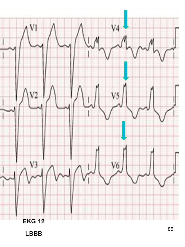 EKG 12 LBBB