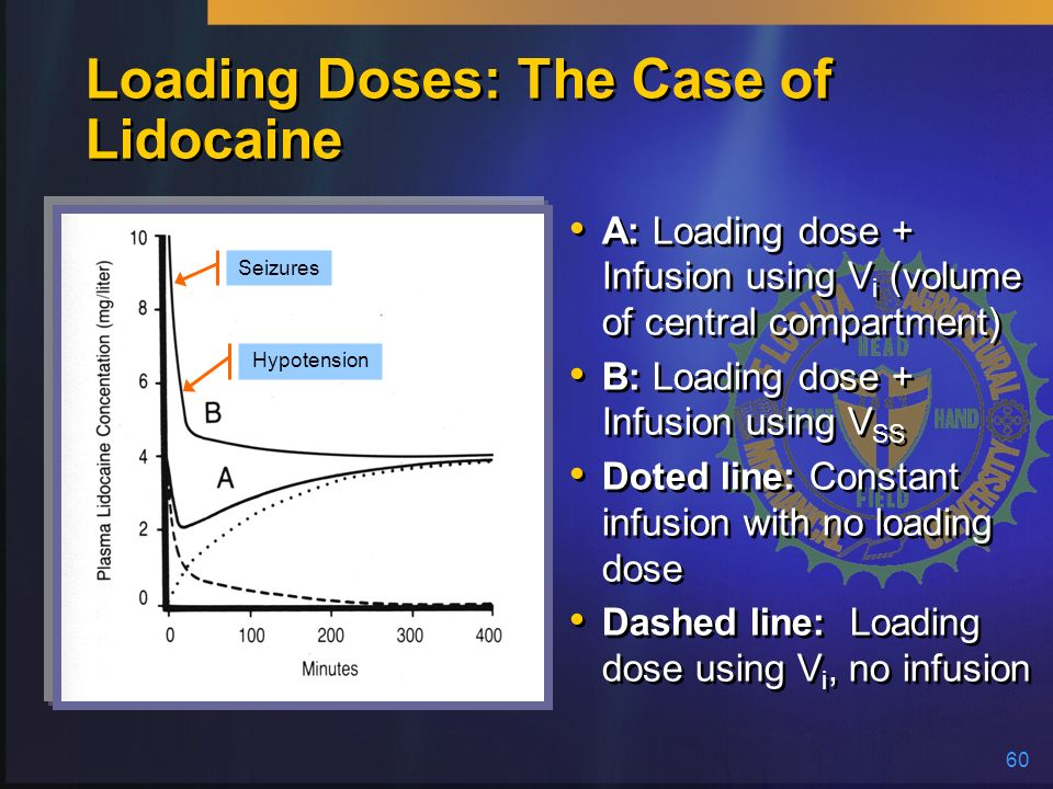 Loading Doses: The Case of Lidocaine