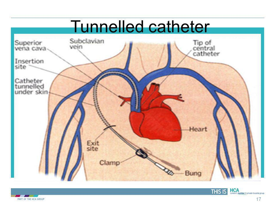 Tunnelled catheter 17