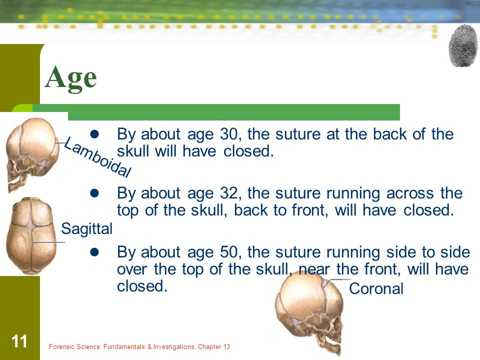 Age By about age 30, the suture at the back of the skull will have closed.