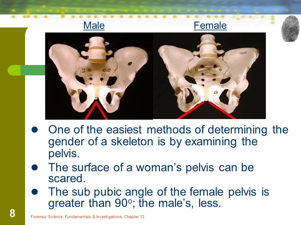 The surface of a woman's pelvis can be scared.