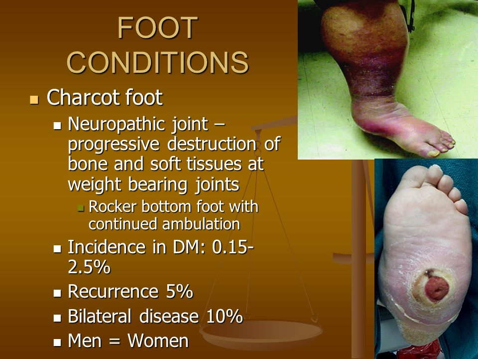 FOOT CONDITIONS Charcot foot