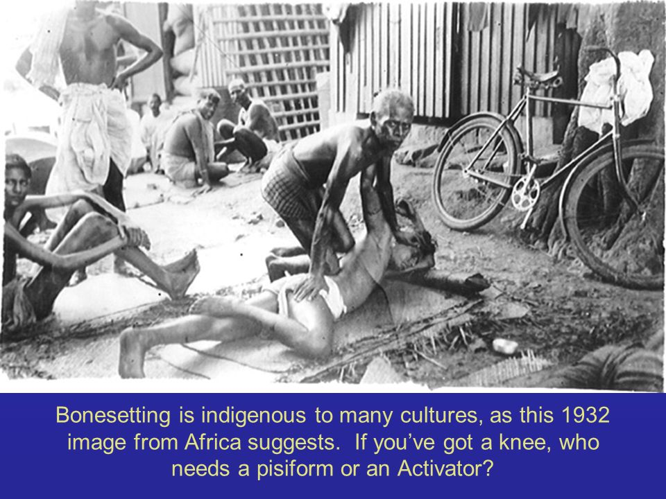 Bonesetting is indigenous to many cultures, as this 1932 image from Africa suggests.