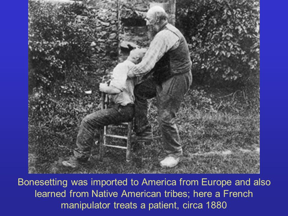 Bonesetting was imported to America from Europe and also learned from Native American tribes; here a French manipulator treats a patient, circa 1880