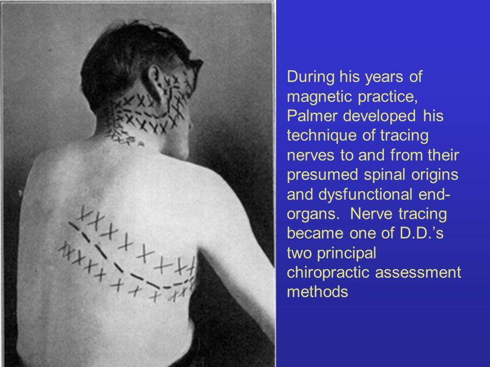 During his years of magnetic practice, Palmer developed his technique of tracing nerves to and from their presumed spinal origins and dysfunctional end-organs.