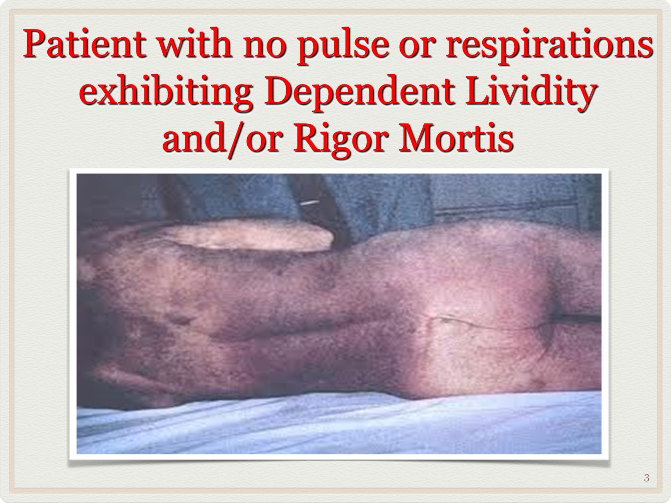 Patient with no pulse or respirations exhibiting Dependent Lividity and/or Rigor Mortis