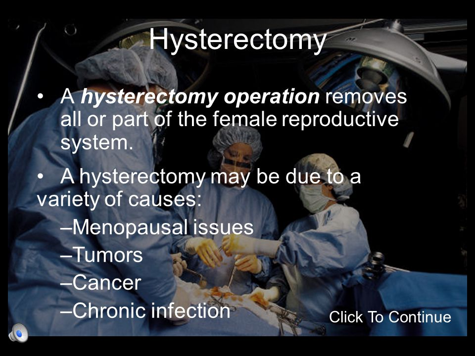 Hysterectomy A hysterectomy operation removes all or part of the female reproductive system. A hysterectomy may be due to a variety of causes:
