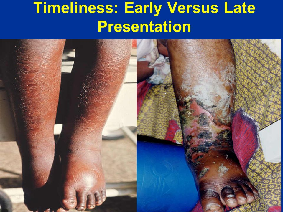 Timeliness: Early Versus Late Presentation