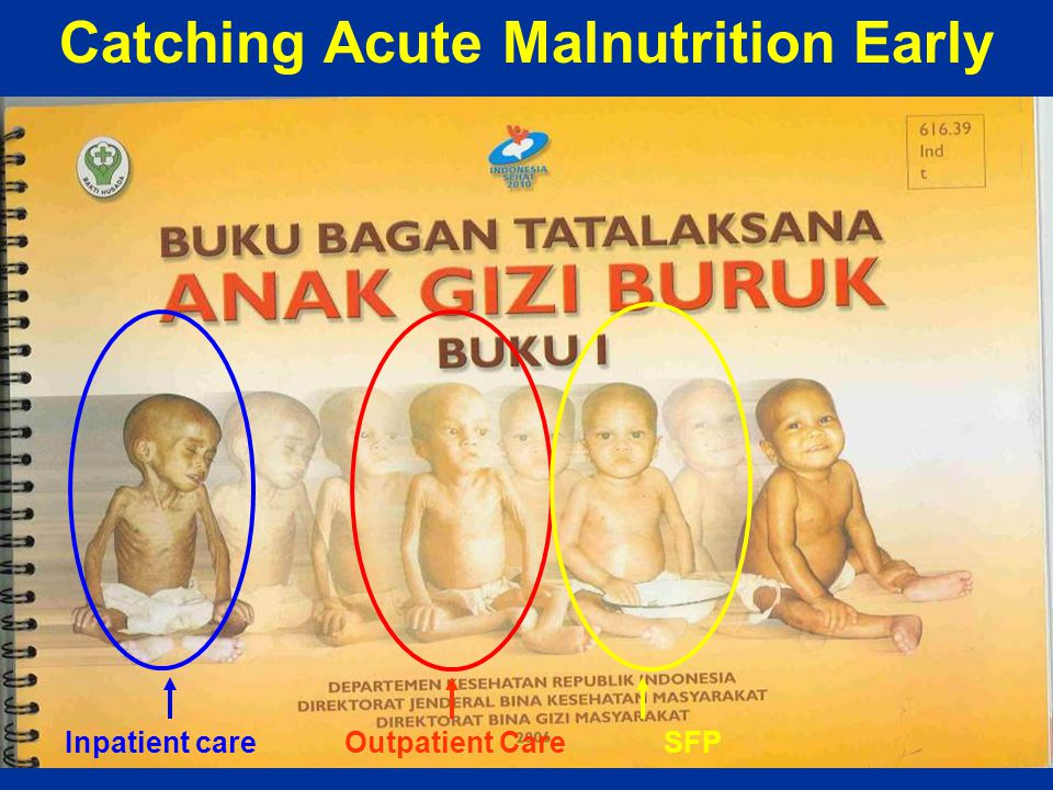 Catching Acute Malnutrition Early