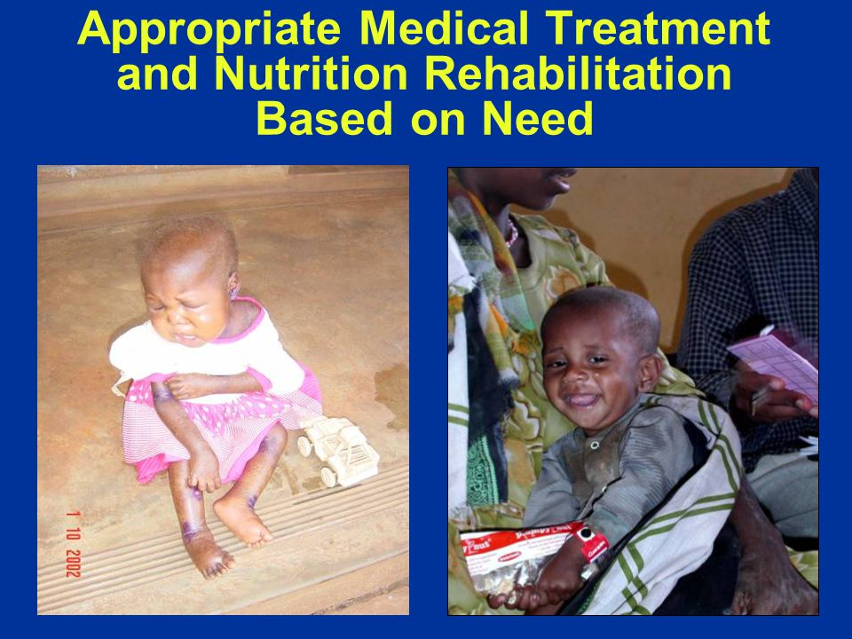 Appropriate Medical Treatment and Nutrition Rehabilitation Based on Need