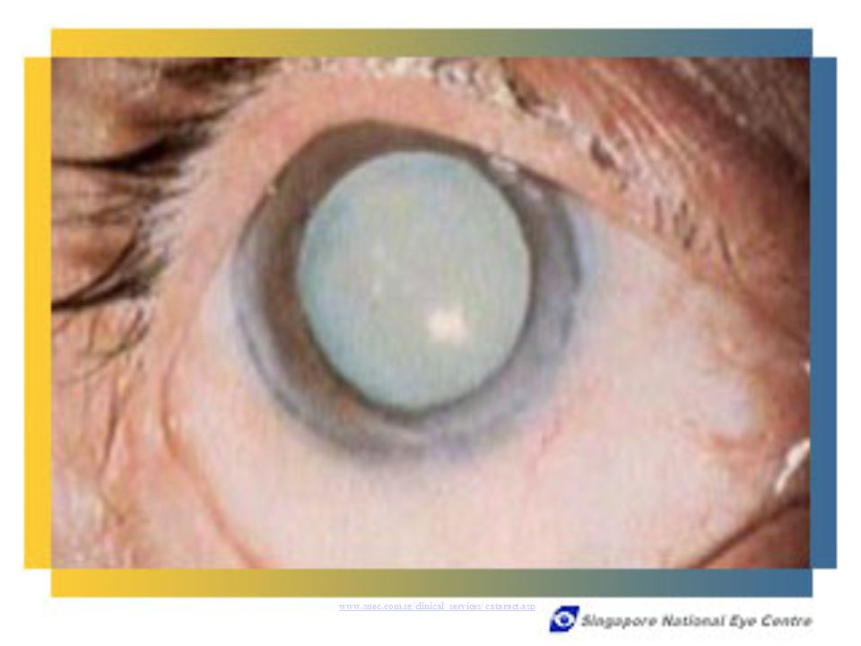 www.snec.com.sg/clinical_services/ cataract.asp