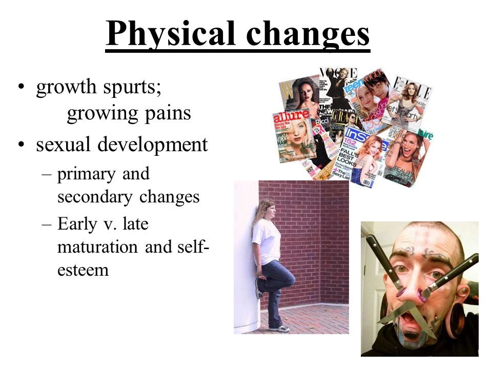 Physical changes growth spurts; growing pains sexual development
