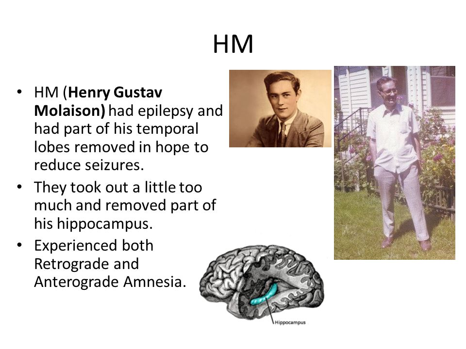 HM HM (Henry Gustav Molaison) had epilepsy and had part of his temporal lobes removed in hope to reduce seizures.
