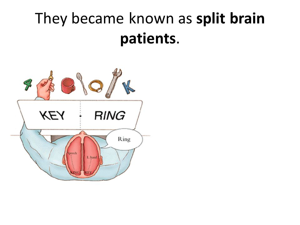 They became known as split brain patients.