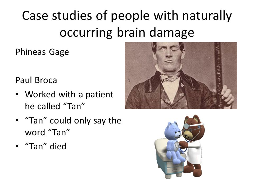 Case studies of people with naturally occurring brain damage