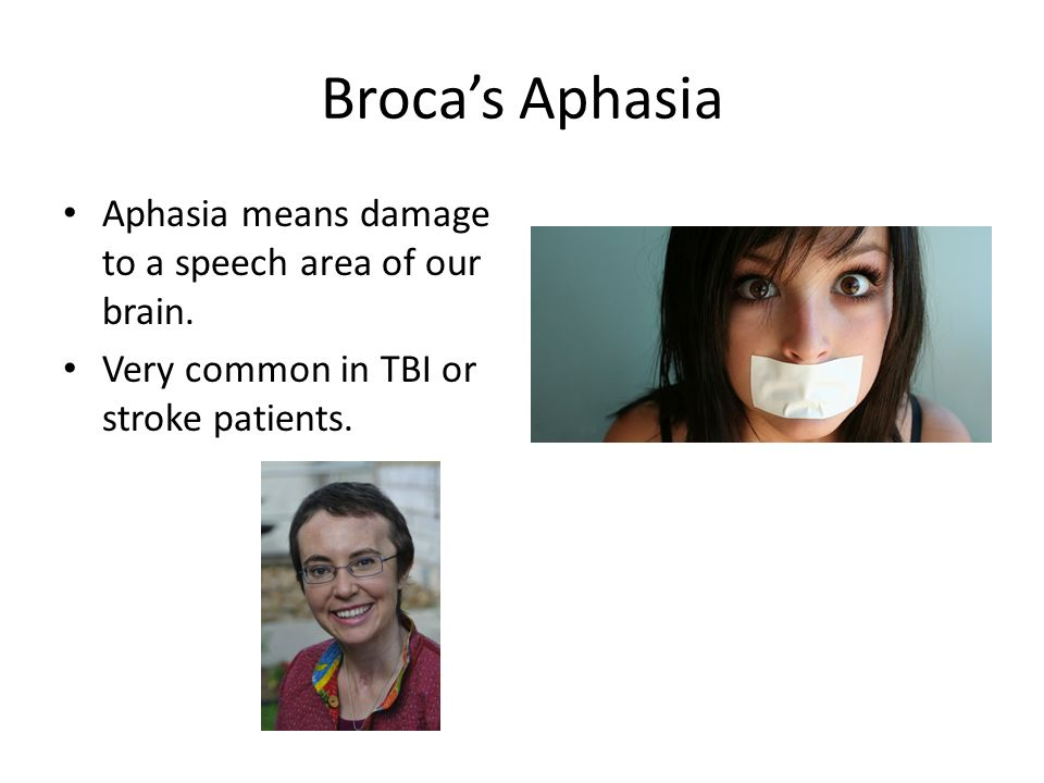 Broca's Aphasia Aphasia means damage to a speech area of our brain.