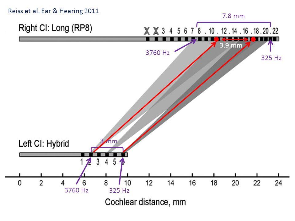 Reiss et al. Ear & Hearing 2011 7.8 mm
