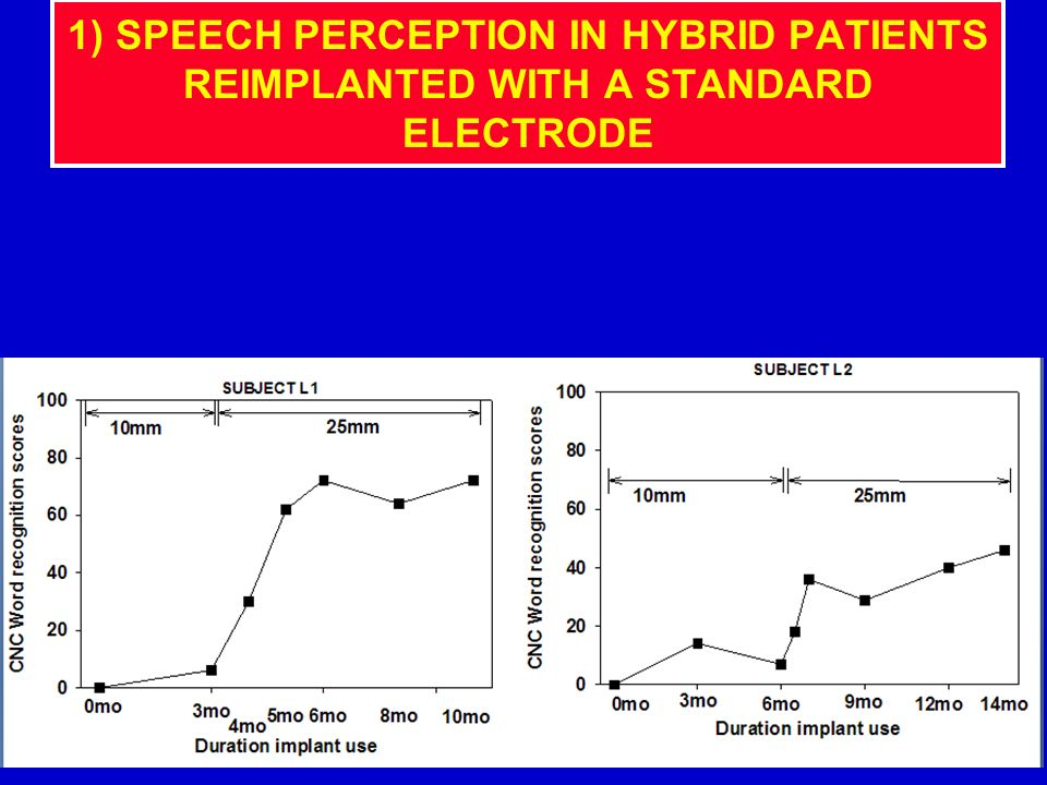 1) SPEECH PERCEPTION IN HYBRID PATIENTS REIMPLANTED WITH A STANDARD ELECTRODE