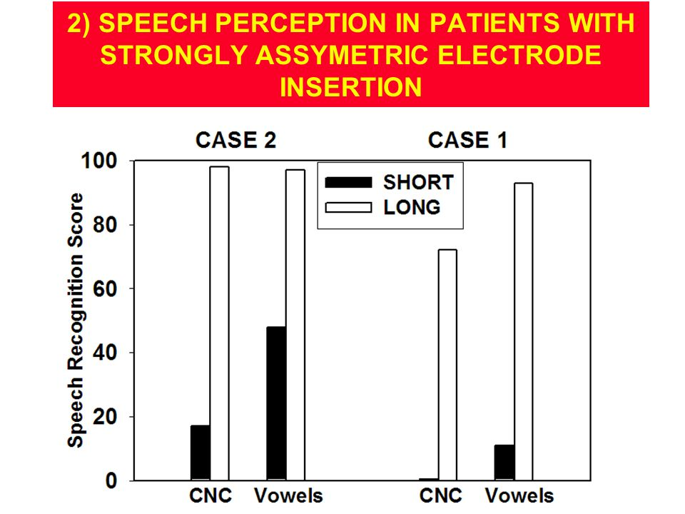 2) SPEECH PERCEPTION IN PATIENTS WITH STRONGLY ASSYMETRIC ELECTRODE INSERTION