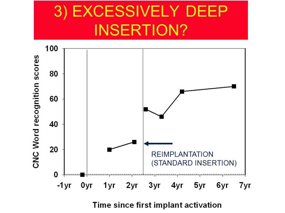 3) EXCESSIVELY DEEP INSERTION