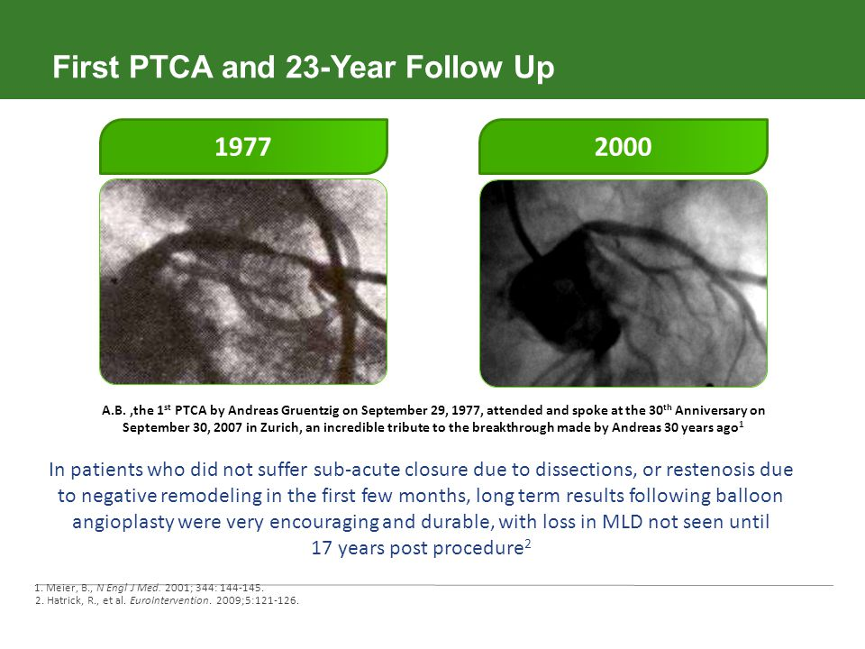 First PTCA and 23-Year Follow Up