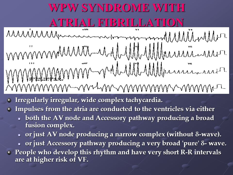 WPW SYNDROME WITH ATRIAL FIBRILLATION