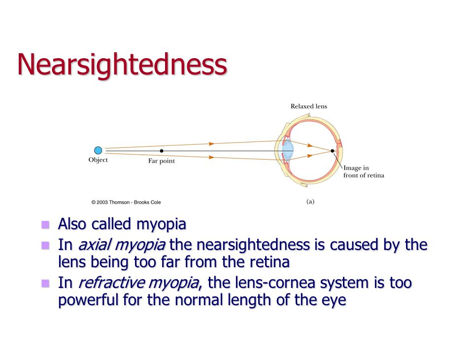 Nearsightedness Also called myopia