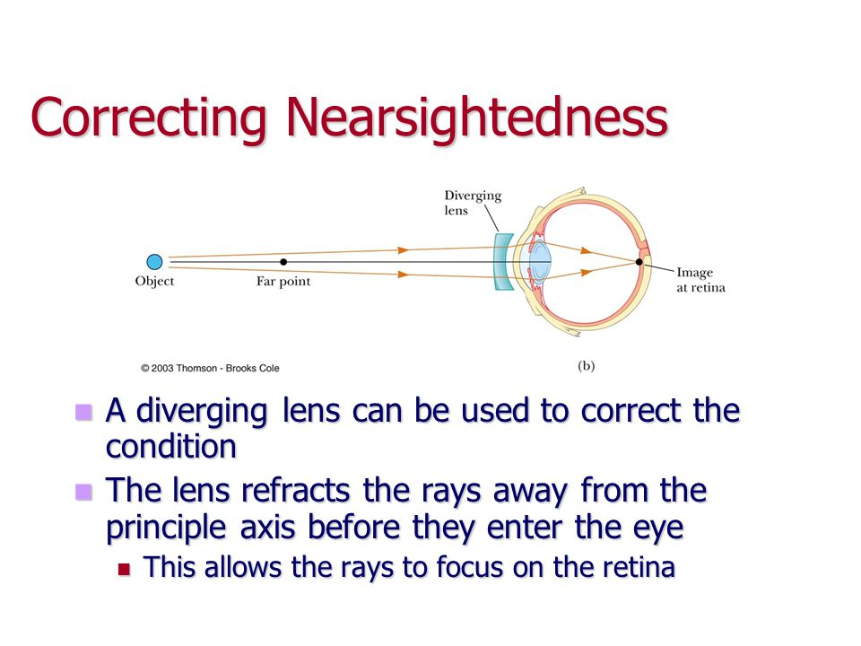 Correcting Nearsightedness