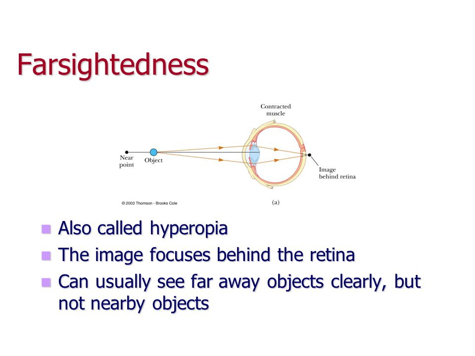 Farsightedness Also called hyperopia