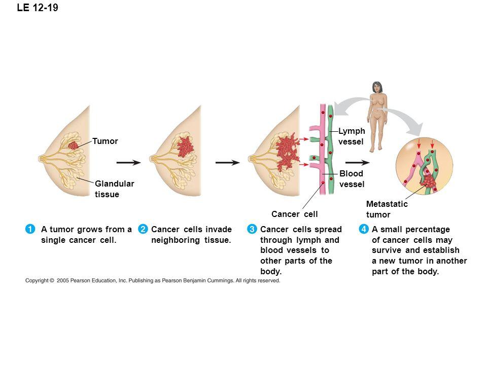 LE 12-19 Lymph vessel Tumor Blood vessel Glandular tissue Metastatic