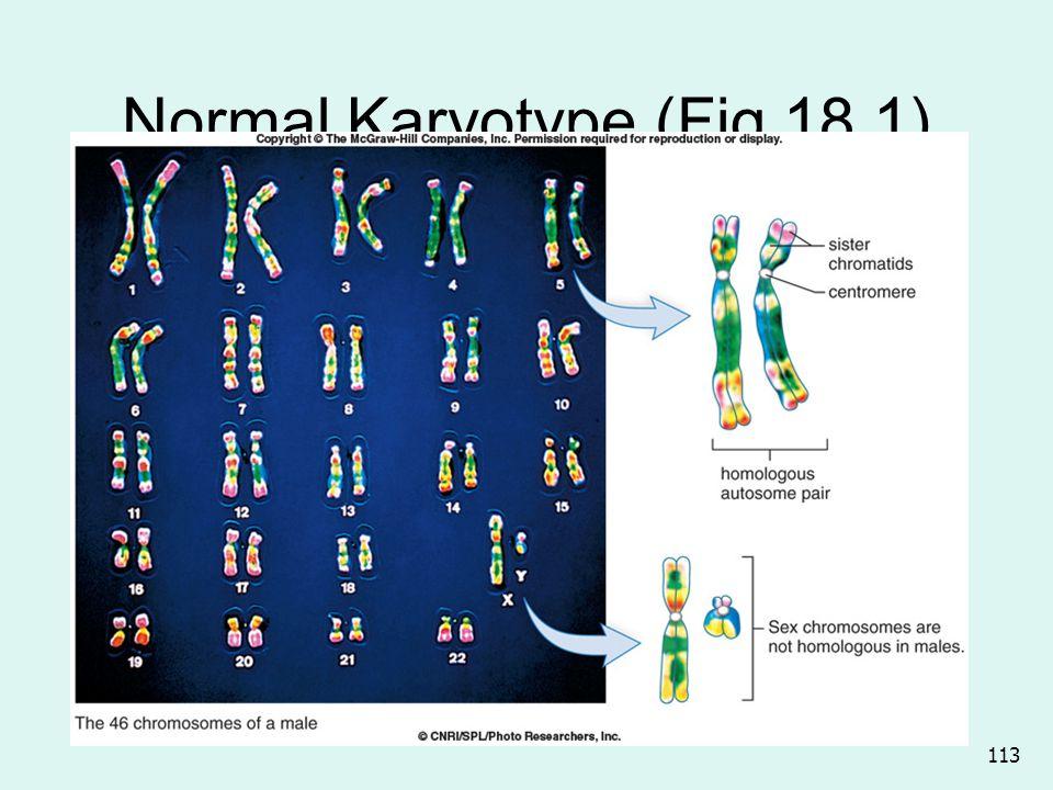 Normal Karyotype (Fig 18.1)