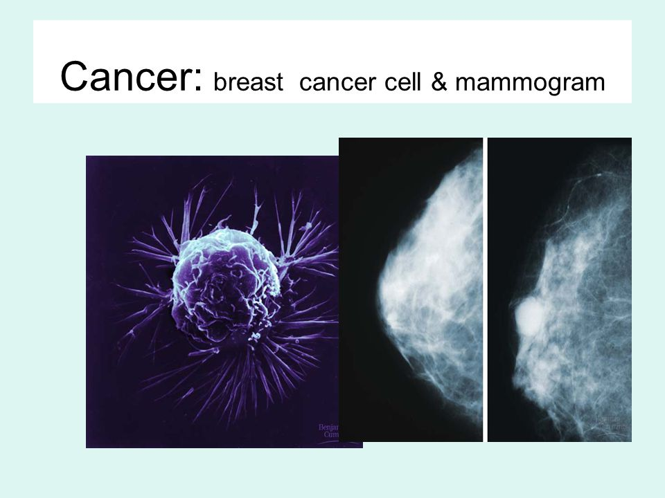 Cancer: breast cancer cell & mammogram