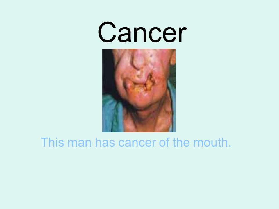 This man has cancer of the mouth.