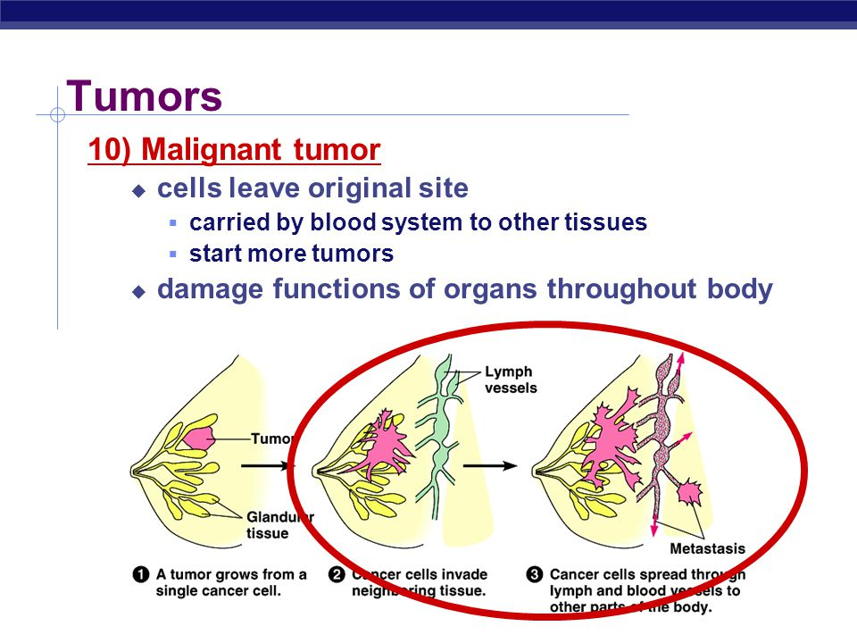 Tumors 10) Malignant tumor cells leave original site