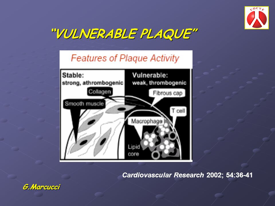VULNERABLE PLAQUE Cardiovascular Research 2002; 54:36-41 G.Marcucci