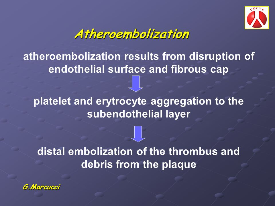 Atheroembolization atheroembolization results from disruption of endothelial surface and fibrous cap.